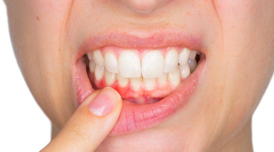 causas-absceso-dental